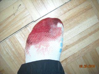 Bloody foot 002
